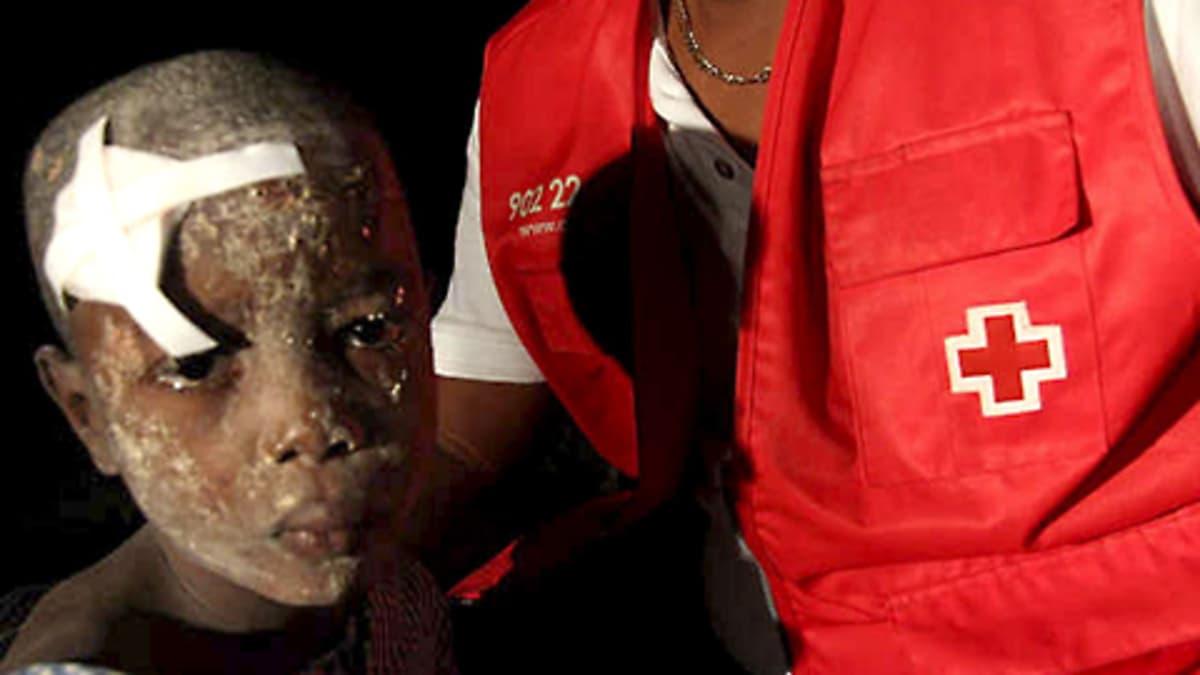 Loukkaantunut poika ja Punaisen Ristin työntekijä