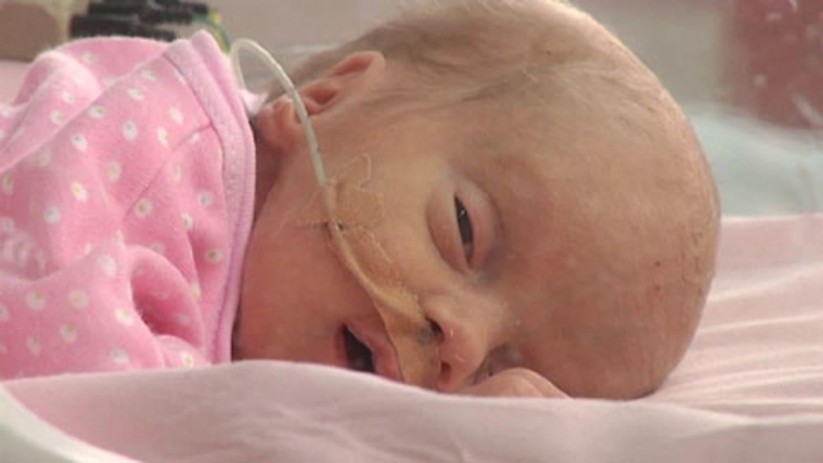 Kuvassa kaksiviikkoinen keskosvauva makaa keskoskaapissa nenässään happiletku. Vauva katselee kameraan.