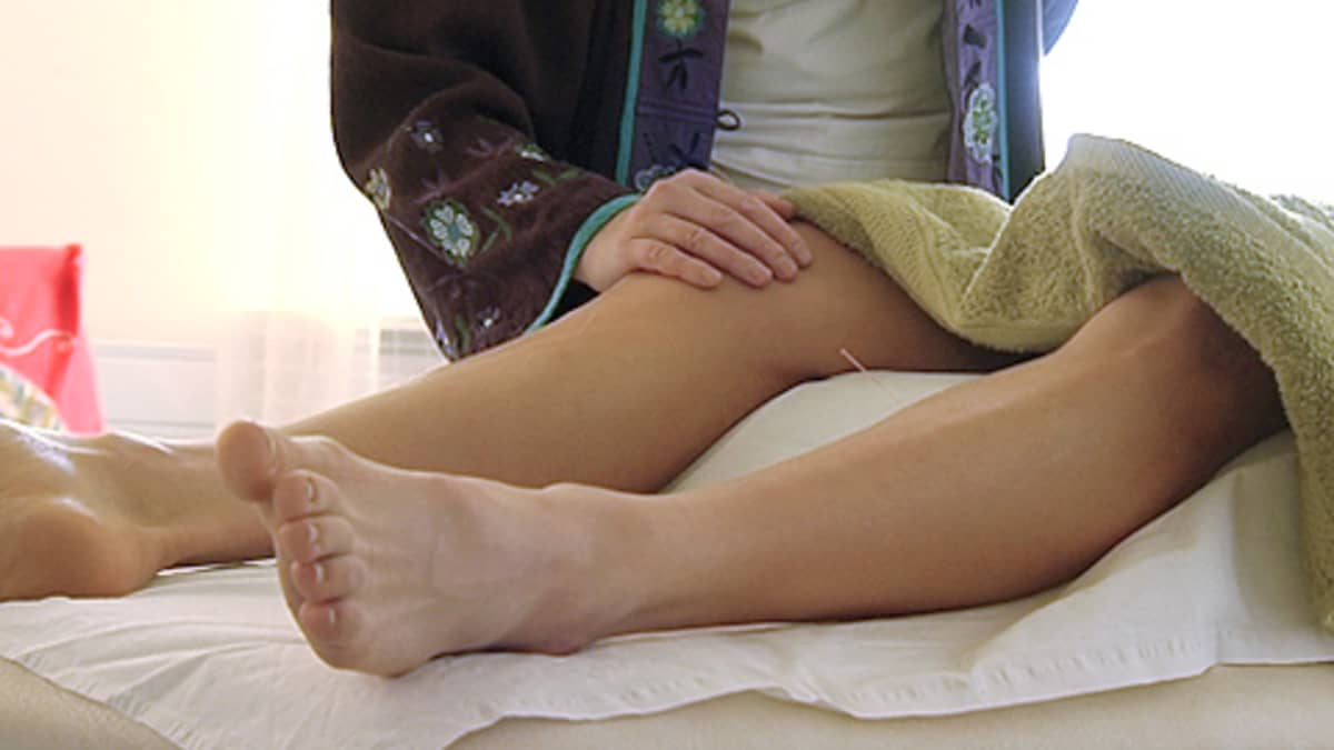 Akupunktiossa