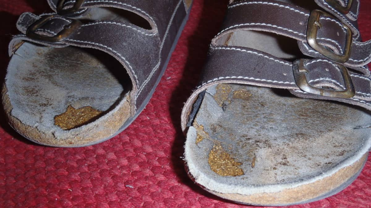 Muhiiko näissä sandaaleissa sieni-infektio?