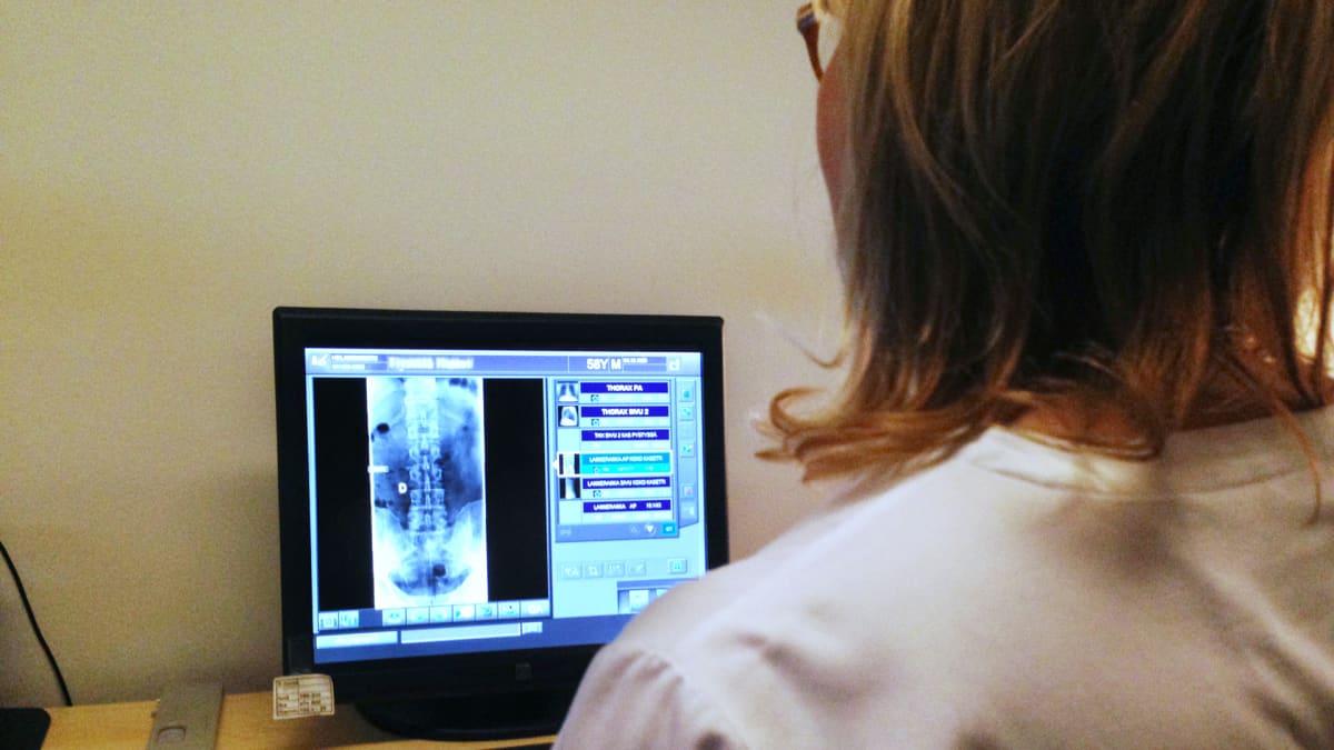 Hoitaja tarkastelee röntgenkuvaa. Itseoppiva Watson-tietokonejärjestelmä toisi apua lääkäreille kuvien tulkitsemiseen.