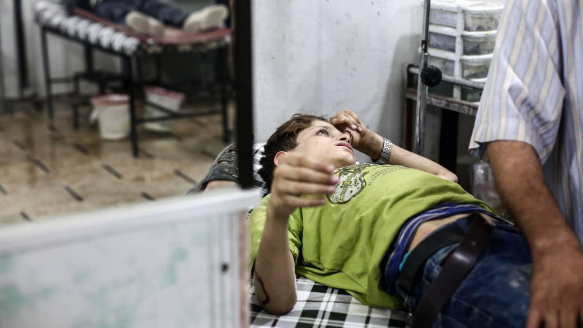 Iskussa haavoittunut lapsi sai apua Douman sairaalassa Syyriassa 21. heinäkuuta 2016.