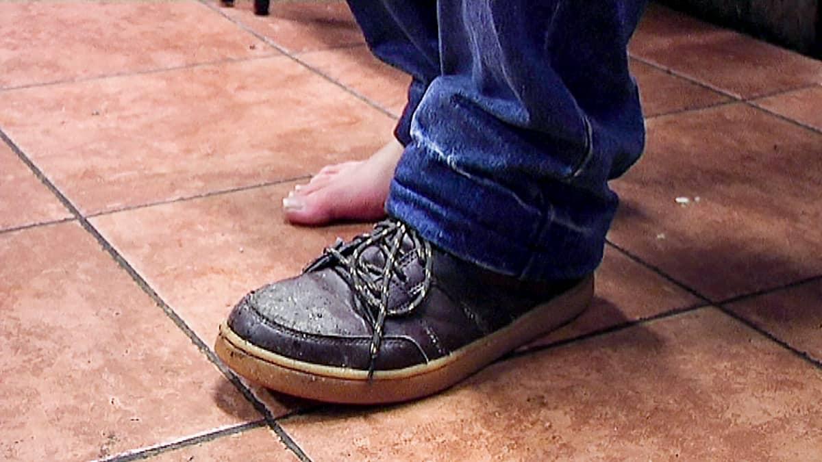 mies, jolla vain toisessa jalassa kenkä
