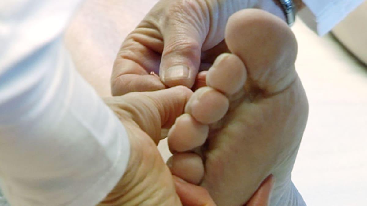 Jalkaan pistetään akupunktioneulaa.