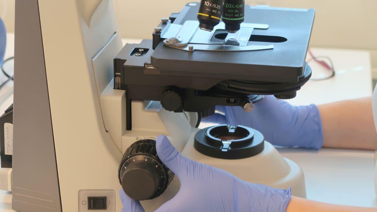 Spermaa tutkitaan mikroskoopilla