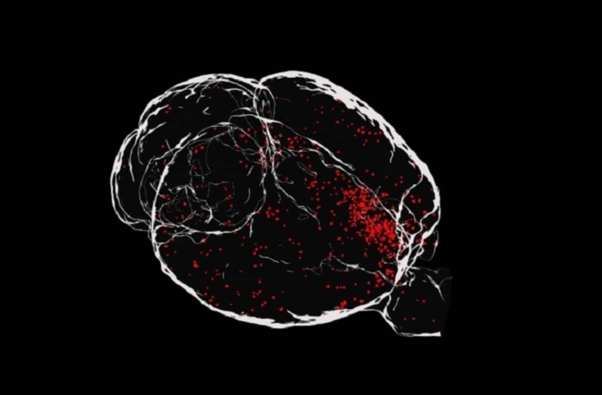 Punaisia täpliä aivoissa.