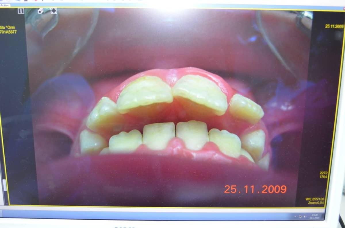 Oikomista vaativat hampaat.