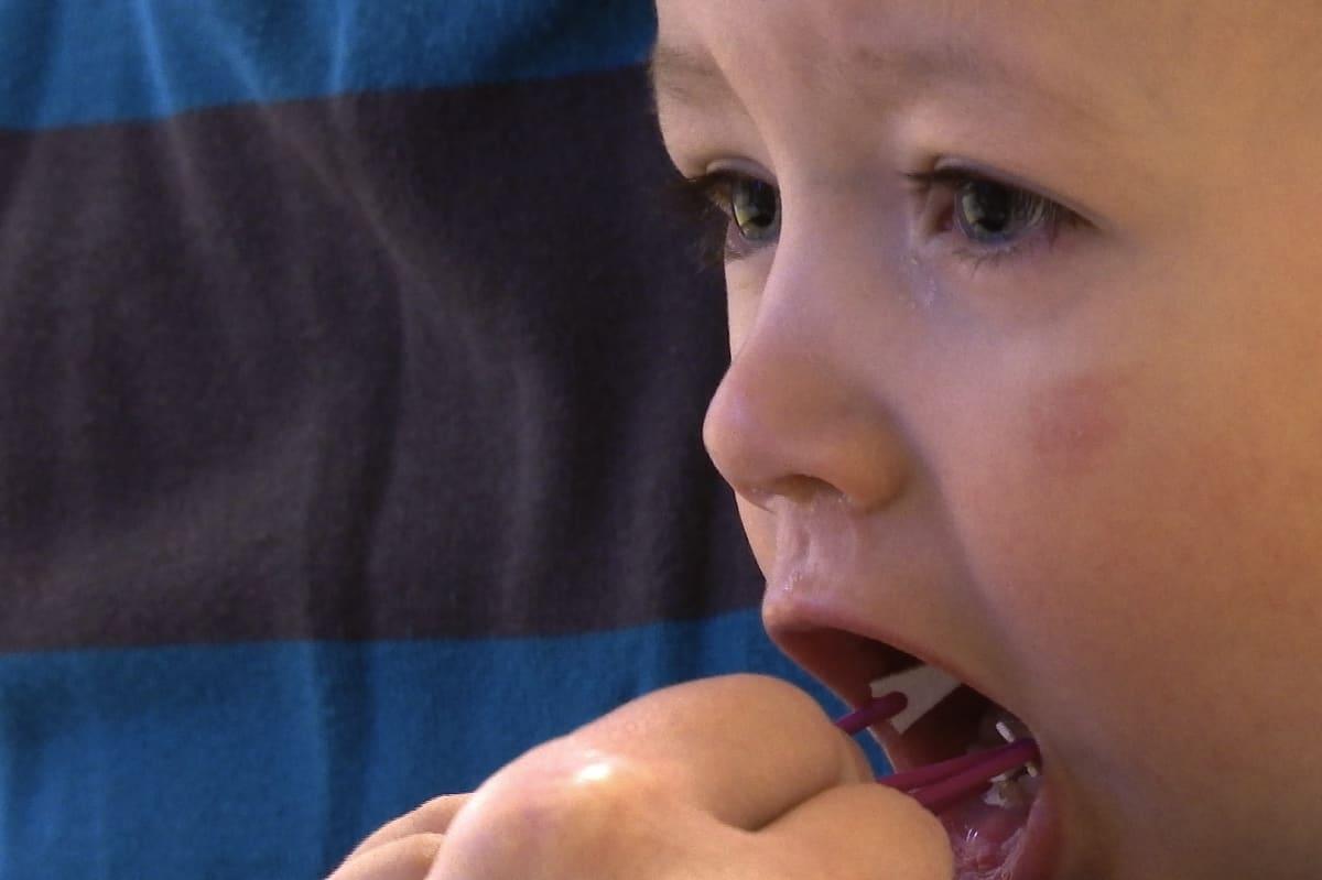 Lapselta otetaan bakteerinäyte tutkimusta varten.
