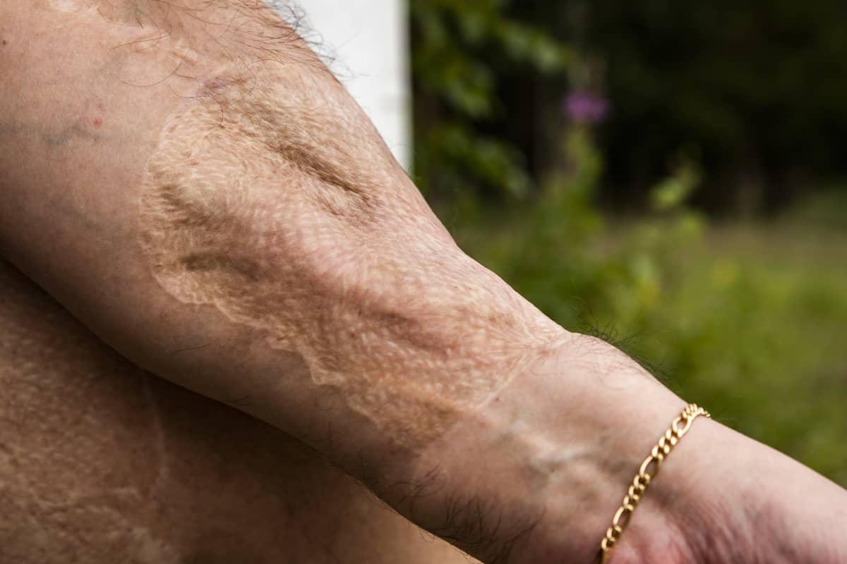 Ilkka Koskikaran arpi kädessä, joka syntyi penis-siirron yhteydessä.