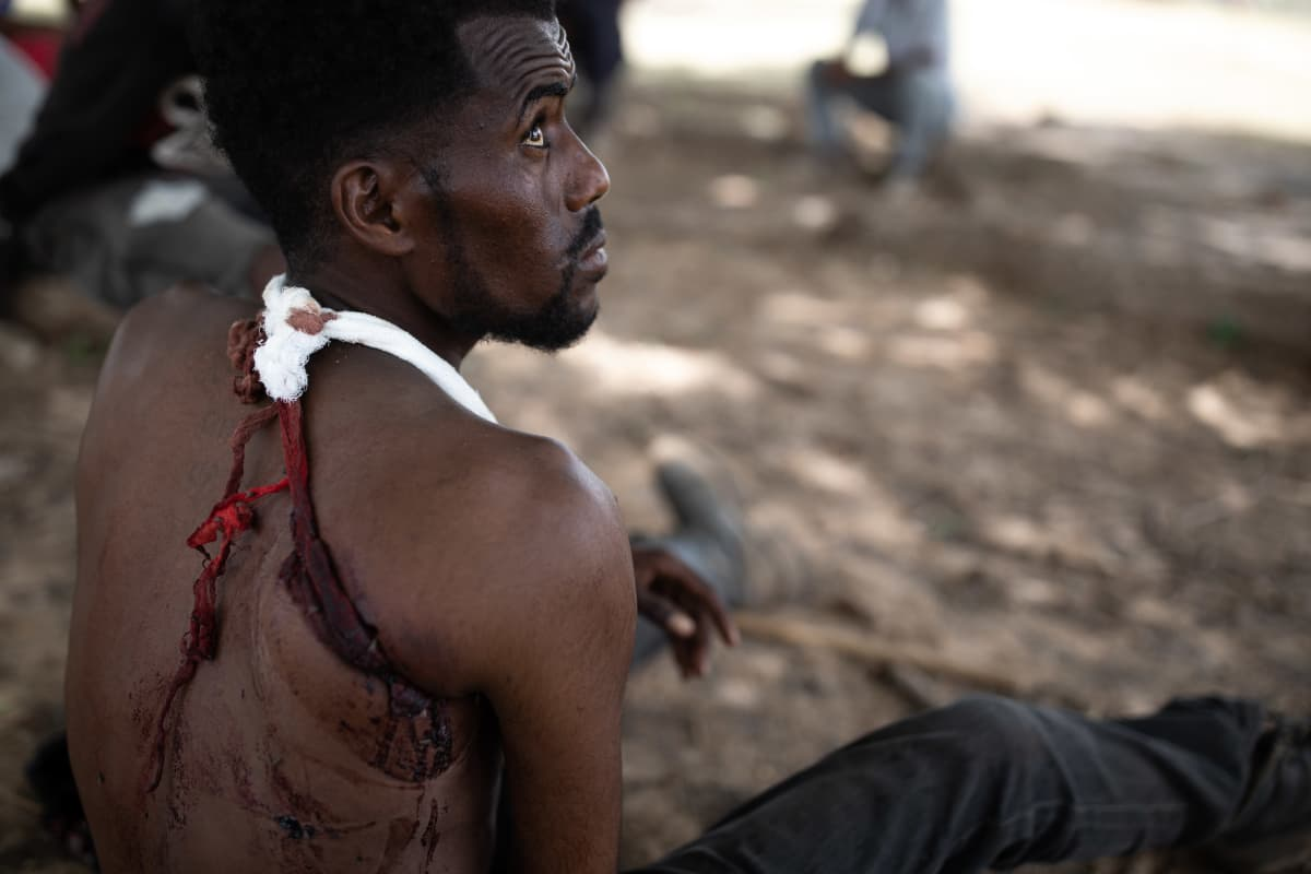 Taisteluista palanuttta TDF-sotilasta on ammuttu olkapäähän.