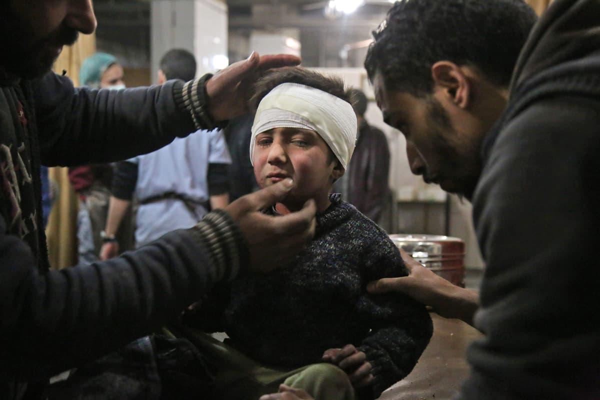 Haavoittunut lapsi Syyriassa.