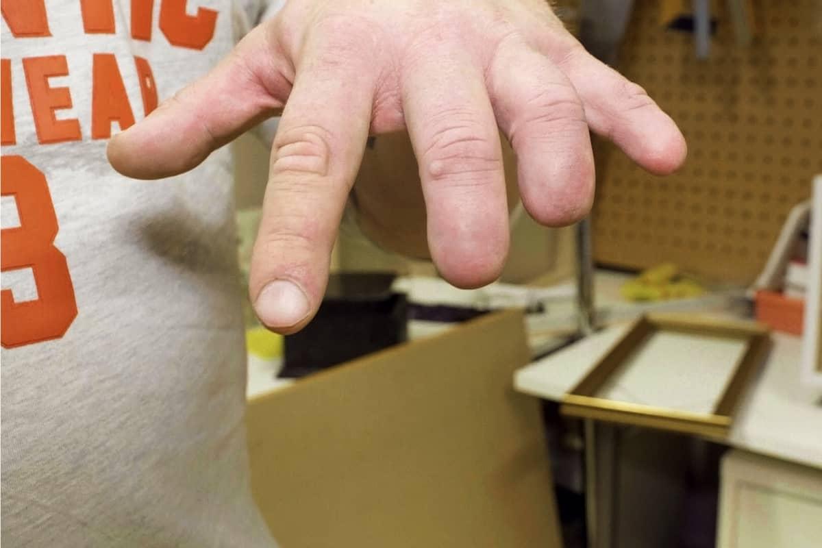 Sami Elovaaran sormet on amputoitu