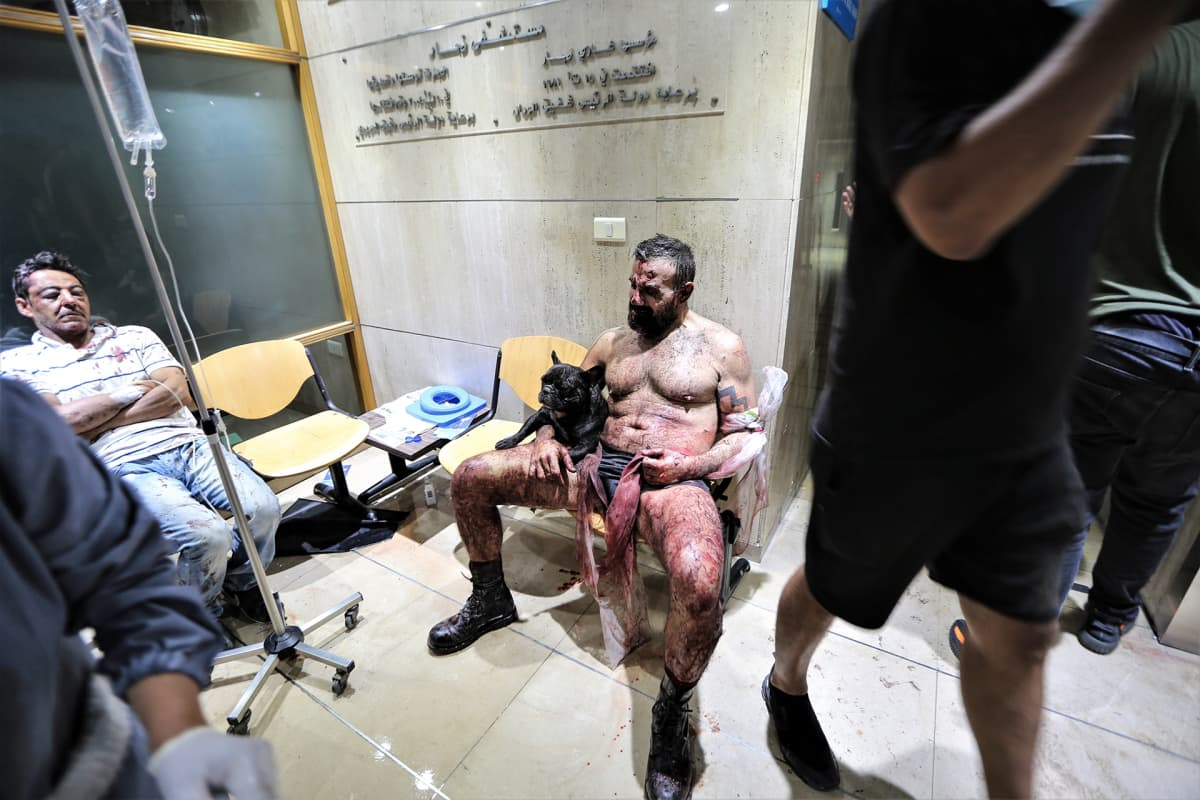 Räjähdyksessä loukkaantuneita ihmisiä Beirutin Najjarin sairaalassa.