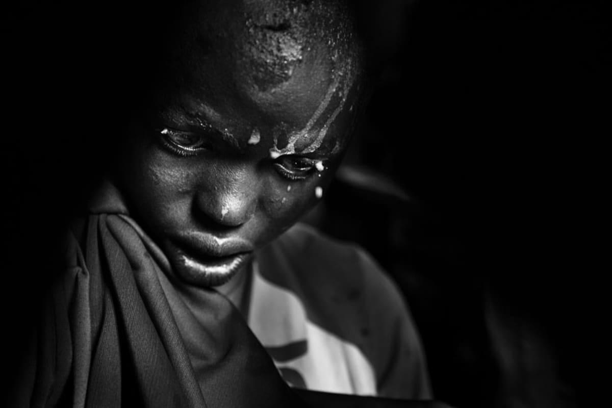 Nasirianin pää ajalleen ihokarvoista päivää ennen ympärileikkausta Masai-kylässä Keniassa.