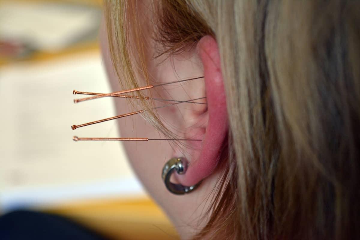 Akupunktioneuloja korvalehdessä kiinni.