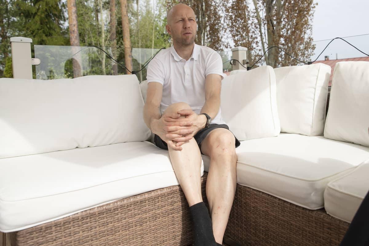 Kuopiolainen Markku Koljonen istuu kotinsa terassilla.