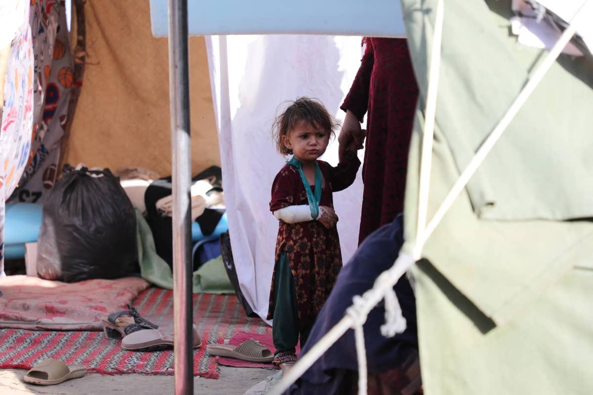 Kätensä loukannut tyttö äitinsä seurassa Kabulissa sijaitsevalla pakolaisleirillä.