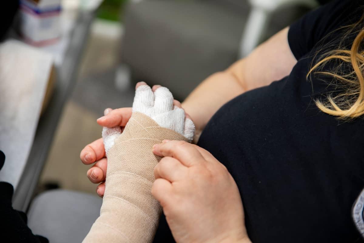 Lymfahoitoa kädelle