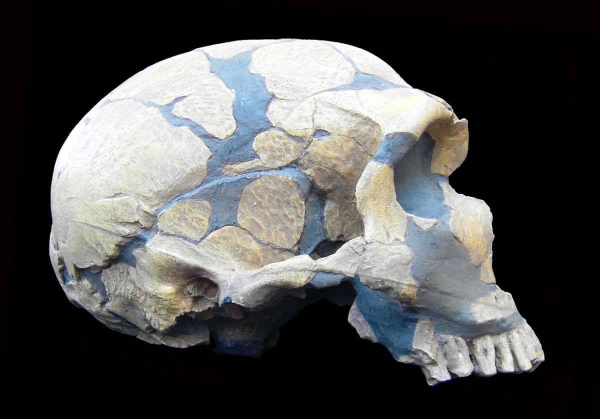 Pääkallo, jonka puuttuvat palaset on  korvattu sinisellä massalla.