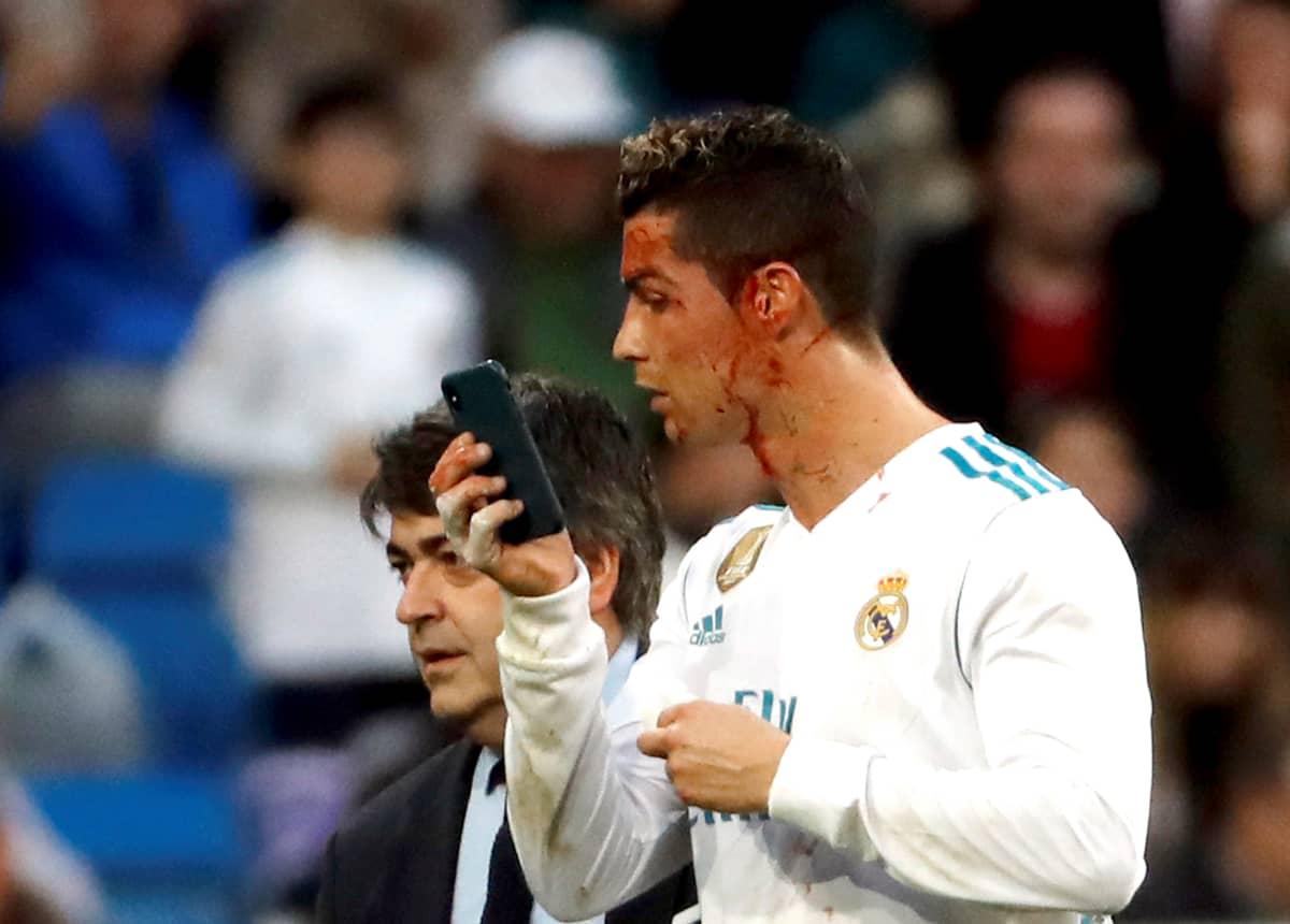 Cristiano Ronaldo tarkastaa kasvojensa vauriota.