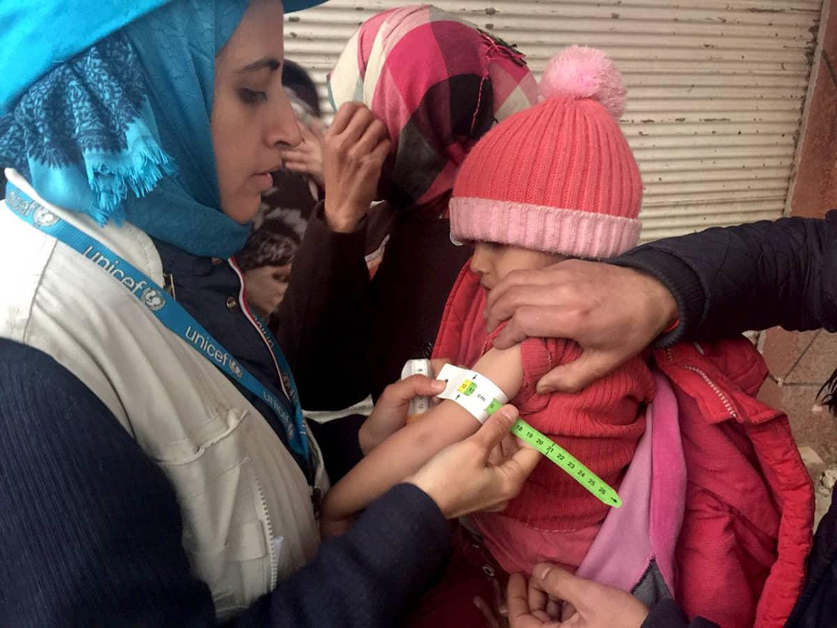 UNICEFin työntekijä mittaa aliravitun lapsen käsivartta Madayan kylässä.