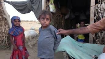 Jemenissä pelätään laajaa nälänhätää - 10-vuotias Hassan sai apua, mutta kotikylässä ruokaa ei riitä tarpeeksi
