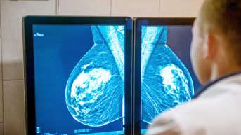 lääkäri tutkii mammografia-kuvia