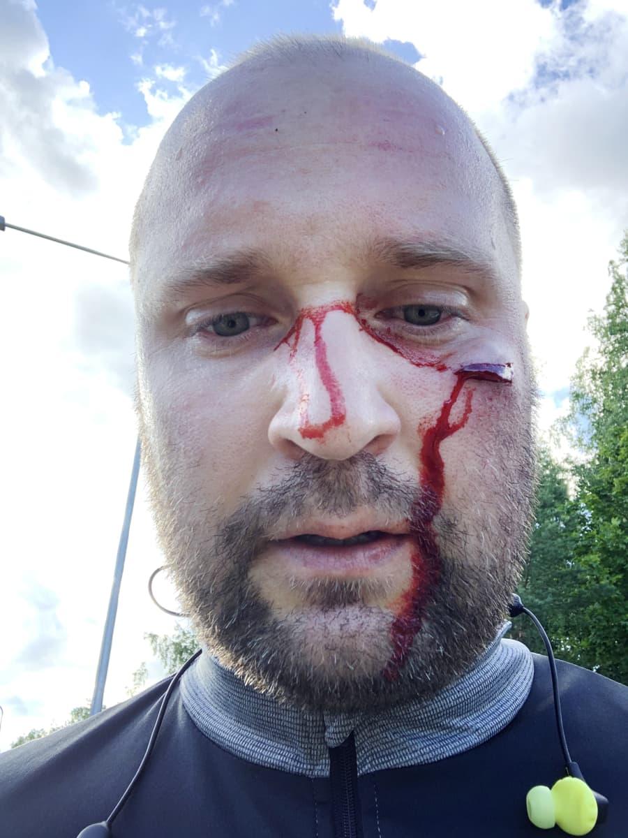 Kuvassa on onnettomuudessa loukkaantunut pyöräilijä.